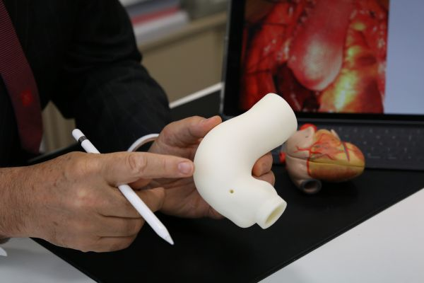 The surgery uses 3D technology to create a life-size copy of the patient's aorta.JPG